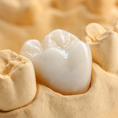 Closeup of model tooth with dental crowns