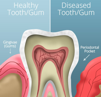 Animation of healthy and unhealthy gums