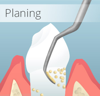 Animation of root planing treatment