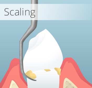 Animation of scaling treatment
