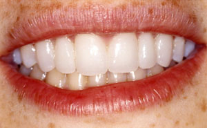 Smile with fixed bridges replacing teeth
