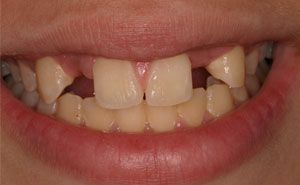 Damaged smile before bridge placement