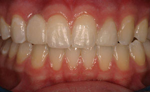 Teeth repaired with fixed bridges