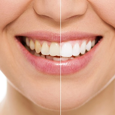 Smile half before and half after teeth whitening