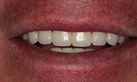 Man smiling closeup after dental crowns