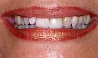 Older woman's flawed teeth before treatment