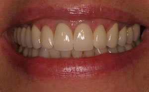 Closeup of healthy teeth and gums after treatment