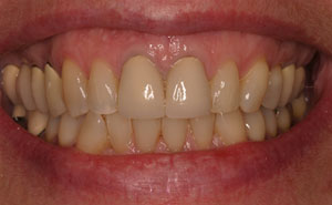 Closeup of unhealthy teeth and gums before treatment