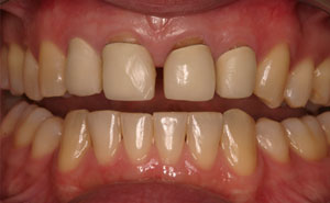 Closeup gapped front top teeth