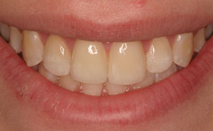Closeup flawlessly repaired front top teeth