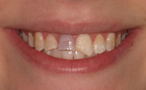 Closeup damaged front top teeth