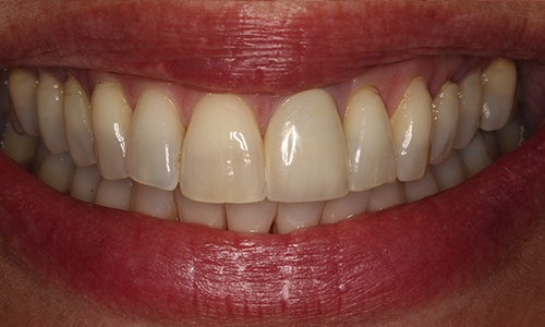 Front tooth replaced with porcelain crown to match natural tooth