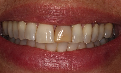 Before image of a discolored, crooked front tooth