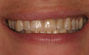 Closeup of discolored front teeth