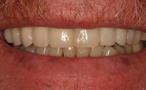 Closeup of healthy evenly spaced teeth