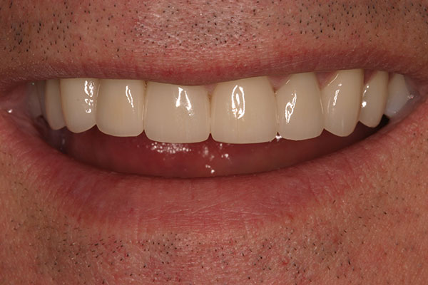 Closeup of beautiful smile after treatment