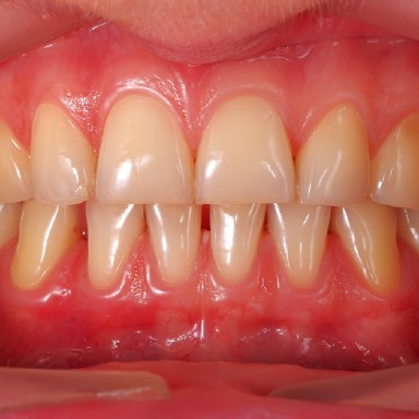 Healthy gums
