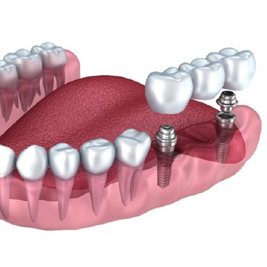 Model of a dental implant bridge in Long Island