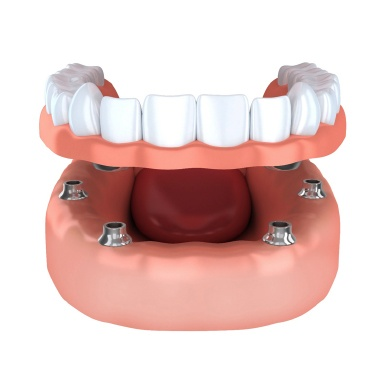 Model of dental implant-retained dentures in Long Island