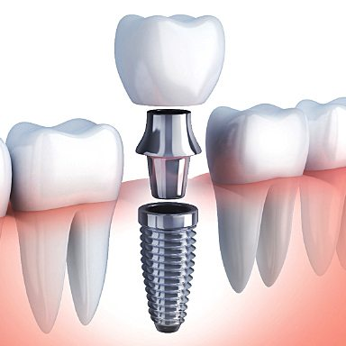 A dental patient wondering who the best Long Island Dental Implant Dentist is