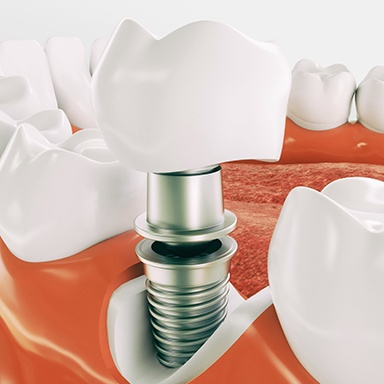 Animation of dental implant crown
