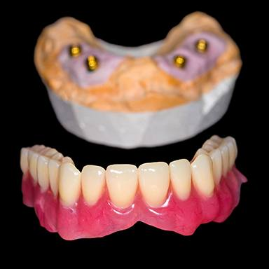 Model of All-on-4 implant denture