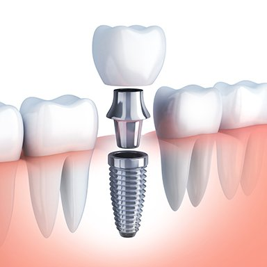 Animation of dental implant retained crown