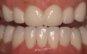 Closeup of perfectly healthy bottom teeth