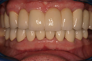 Senior man teeth and gums closeup after full mouth reconstruction