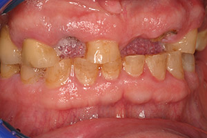 Senior man teeth and gums closeup before full mouth reconstruction