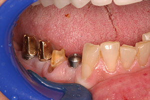 Closeup bottom teeth with implants in place