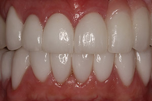 Closeup bottom teeth with restorations in place