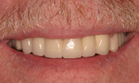 Senior man patient closeup after full mouth reconstruction