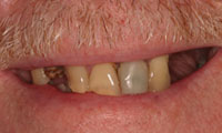 Senior man patient closeup before full mouth reconstruction