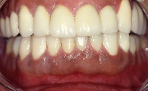 Flawless healthy smile after full mouth reconstruction