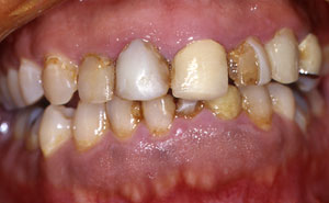Damaged and decayed teeth closeup