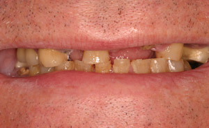 Before image of discolored and missing teeth