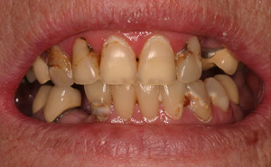 Closeup of severely damaged teeth