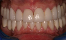 Closeup of white bottom teeth
