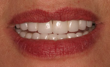 Corrected top teeth after treatment
