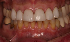 Yellow bottom teeth before treatment