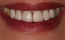 Closeup of top teeth with gaps