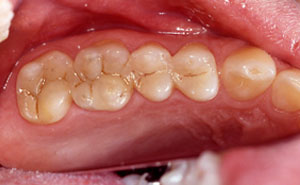 Two teethwith tooth colored fillings