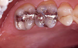 Two teeth with silver fillings