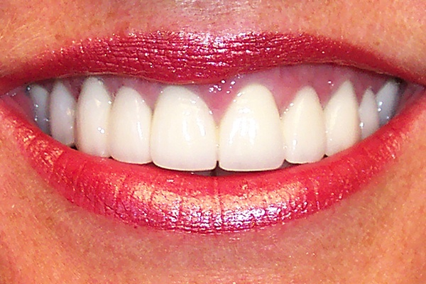 Closeup of smile with even gum line