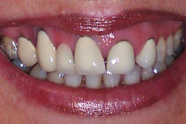 Closeup of smile with uneven gum line