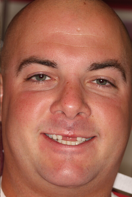 Man with missing front teeth before implants