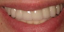 Closeup of smile with natural looking implant denture