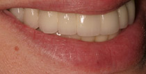 Closeup of left side of smile with implant denture
