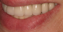 Closeup of right side of smile with implant denture